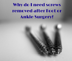 Why do I need screws removed after Foot or Ankle Surgery?